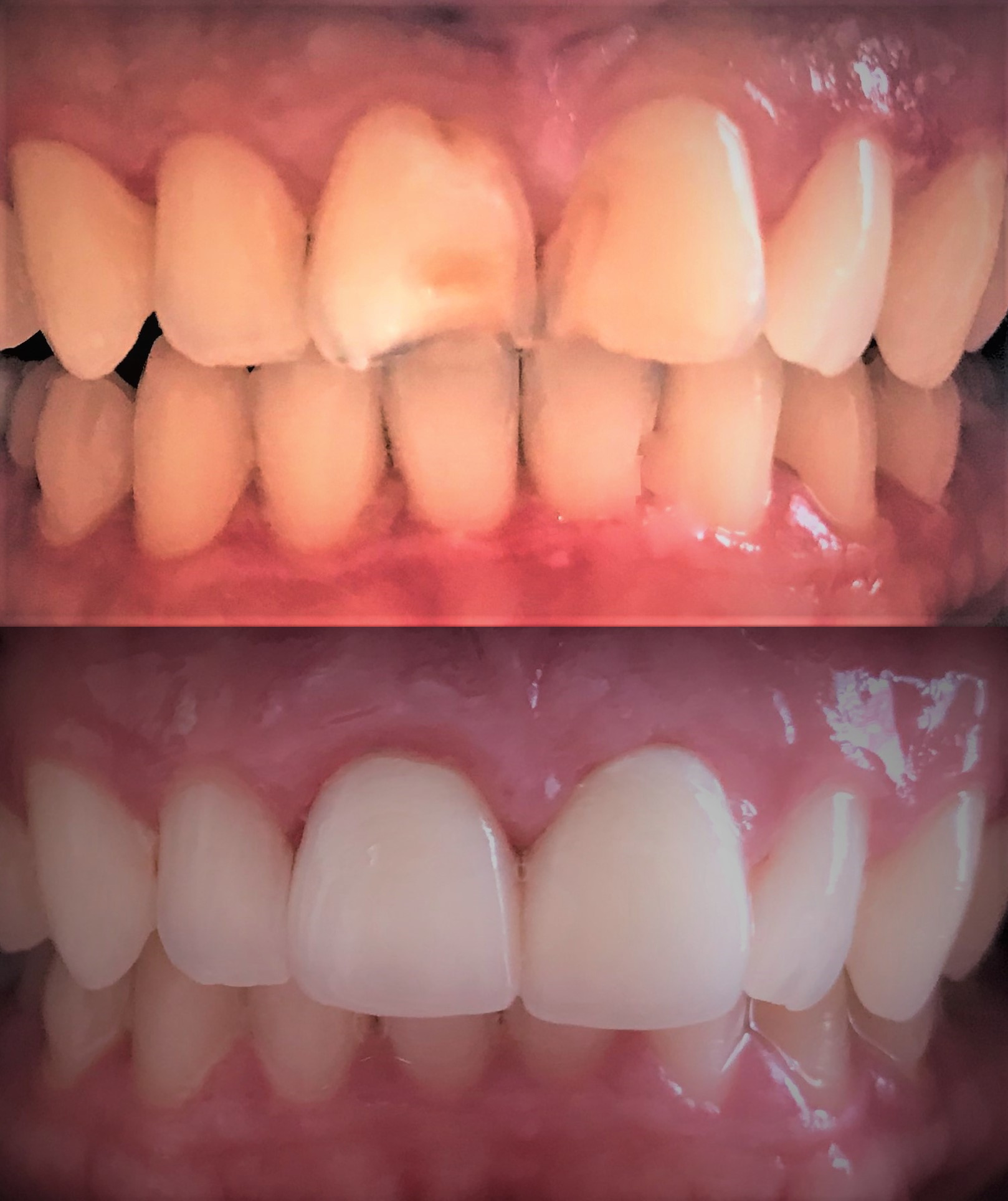 Austin Dental Veneers, Dental Veneers Austin